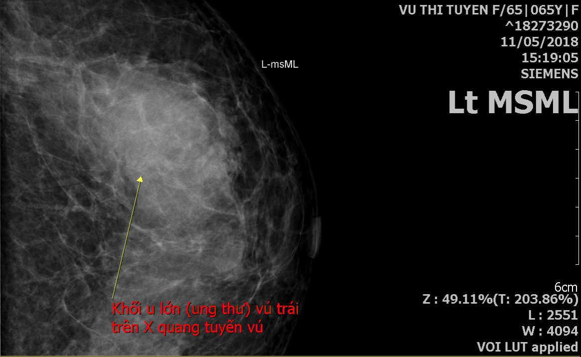 Bài giảng Chẩn đoán hình ảnh tuyến vú <FMC 12.2019 dịch>