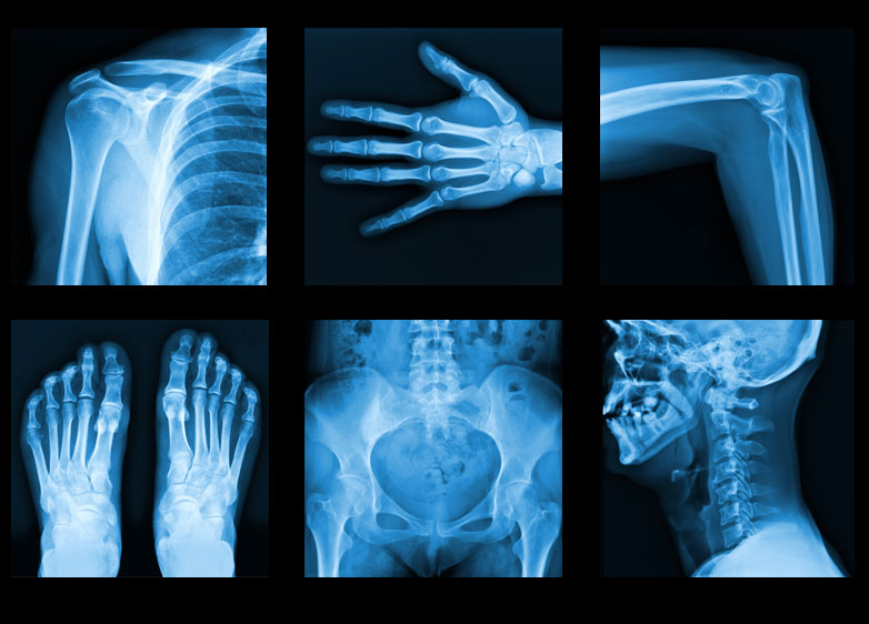 Tài liệu tham khảo kỹ thuật chụp x-quang thường quy
